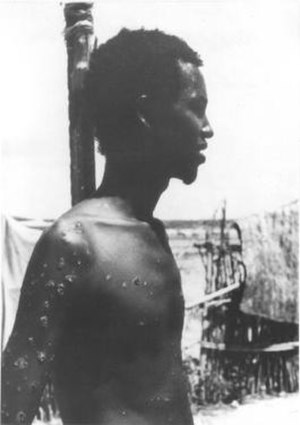 Ali Maow Maalin - Ali Maow Maalin in 1977, while infected with smallpox.