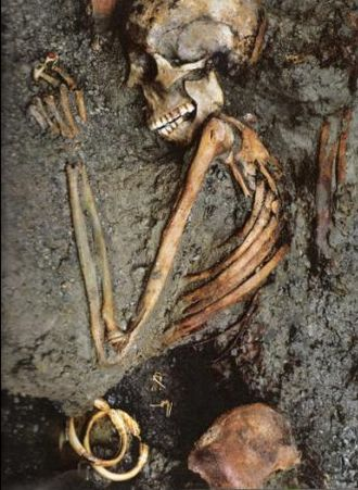 "Eruption of Mount Vesuvius in 79 - The skeleton called the ""Ring Lady"" unearthed in Herculaneum"