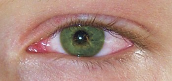 tetes mata antibiotik dan steroid