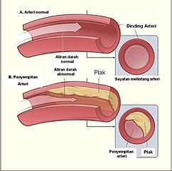 https://upload.wikimedia.org/wikipedia/id/thumb/b/bc/Diagram_aterosklerosis.jpg/242px-Diagram_aterosklerosis.jpg