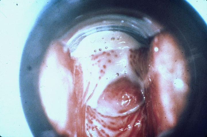 trichomonas gravidanza