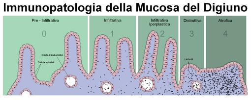 Modello schematico che mostra l'immunopatogenesi dell'atrofia dei villi in un contesto infiammatorio infiltrativo sostenuto da linfociti.