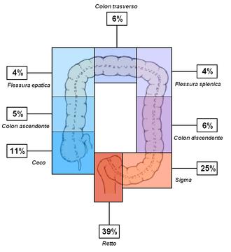 Insorgenza relativa di CRC nei vari tratti del colon[42].