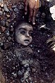 Bhopal gas disaster girl by pablo bartholomew.jpg