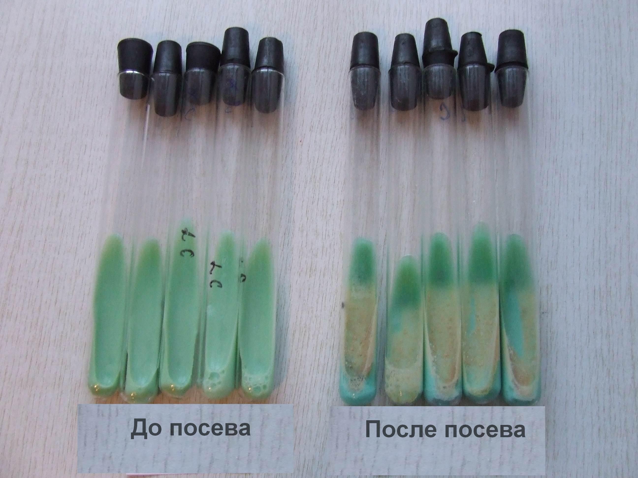 пробирки с результатами посева на микоплазму
