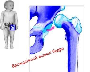 Дисплазия тазобедренного сустава — Википедия