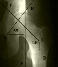 Дисплазия левого тазобедренного сустава у больного М., 25 лет с начальными клиническими признаками коксартроза: уплотнение субхондральной пластинки крыши вертлужной впадины. Разметка рентгенограммы.