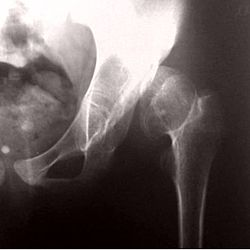 Congenital dislocation of the hip 11.jpg