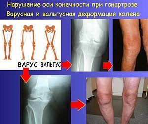 что такое остеоартроз нижних конечностей