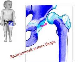 Дисплазия легкой степени правого тазобедренного сустава тип 2а боль в плечевом суставе левой руки причины