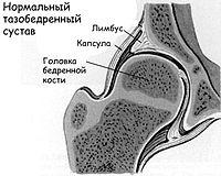 ангулометрия плечевых суставов