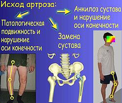 Артрито-артроз коленного сустава википедия суставы лечение белки