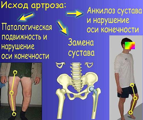 Гирудотерапия при синовите коленного сустава