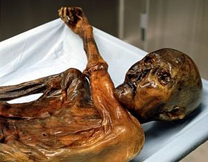 Ötzi the Iceman on a sheet-covered autopsy table