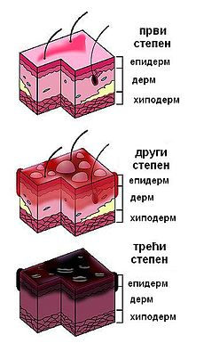 350px-Burn Degree Diagram Ukr.jpg
