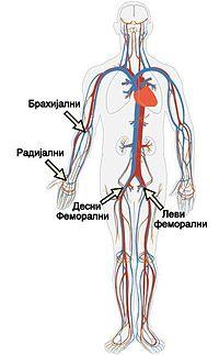 kateterizacija srca � vikipedija slobodna enciklopedija