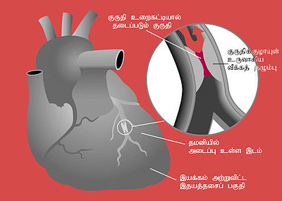 Heart attack diagram ta.jpg