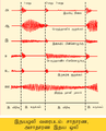 Phonocardiograms from normal and abnormal heart sounds ta.png