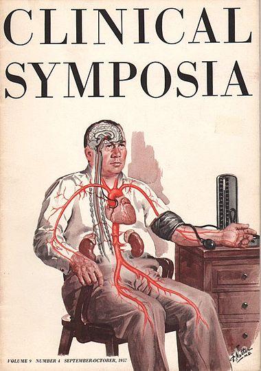 """Frank H. Netter'in resimlediği """"Clinical Symposia"""" kitapçıklarından 1957 yılının Eylül/Ekim ayına ait bir sayı görülüyor. Bu sayının konusu """"Hipertansiyon""""."""