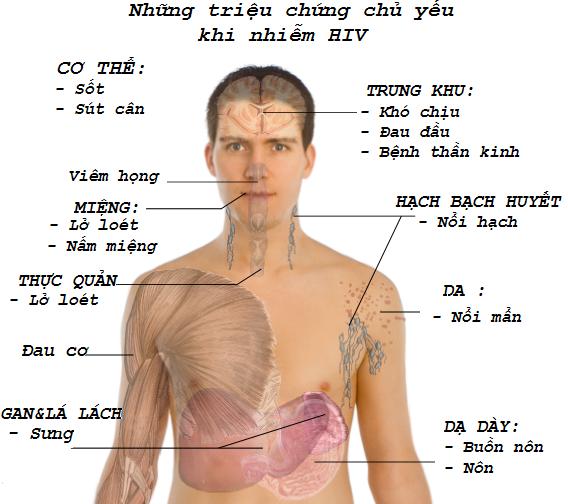dấu hiệu nhiễm HIV