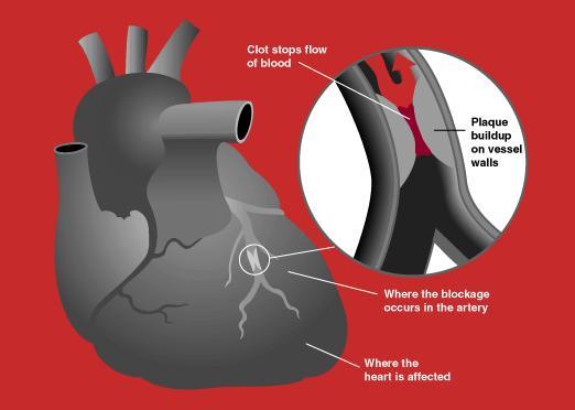 heart attack diagram. heart attack diagram. heart