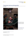 Caesarean section photography.pdf