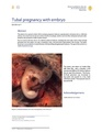 Tubal pregnancy with embryo.pdf